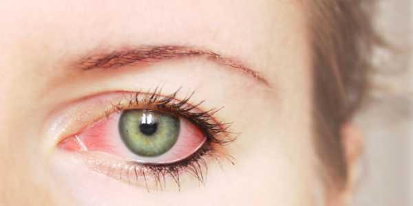 Глаз воспалился после простуды что делать 106